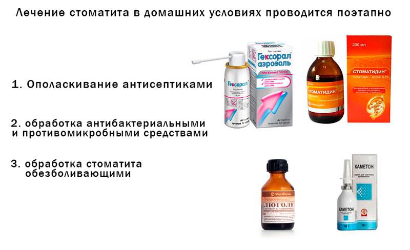 Порядок лечения стоматита